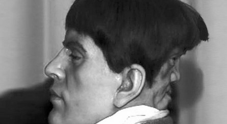 Edward Mordake a dvojitá tvár