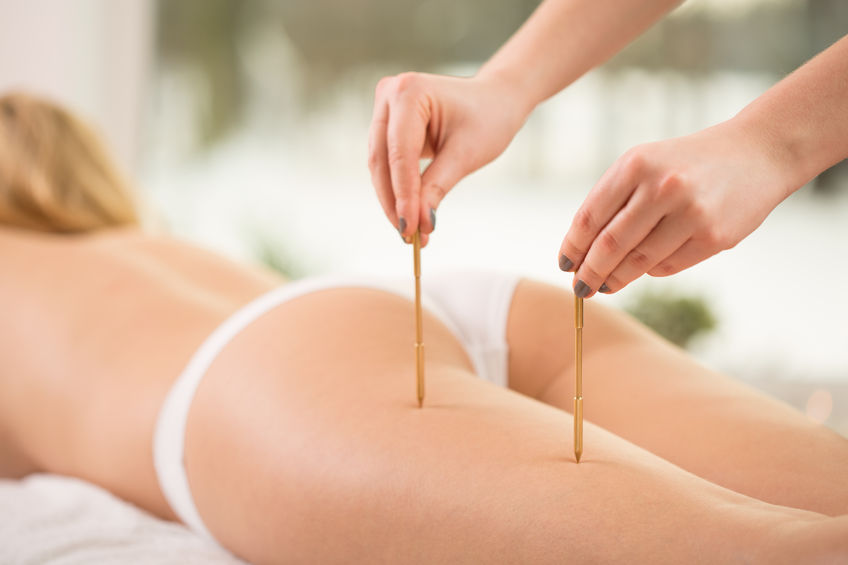 42076417 - therapist pressing acupuncture points on young woman's leg
