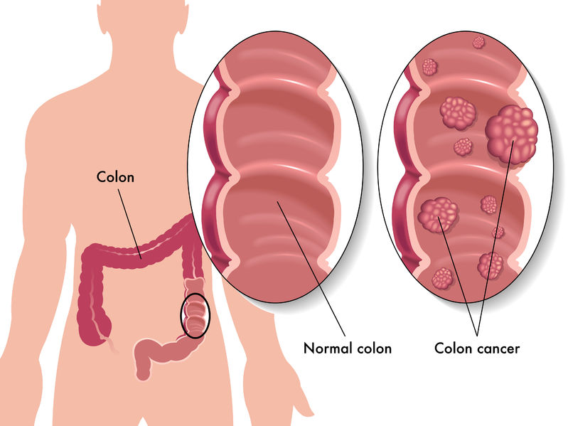 27490934 - colon cancer