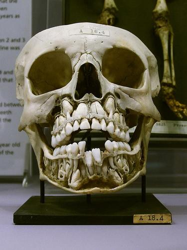 Detská lebka a mliečne a dospelé zuby